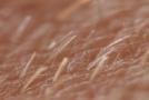 Huidveroudering voorkomen